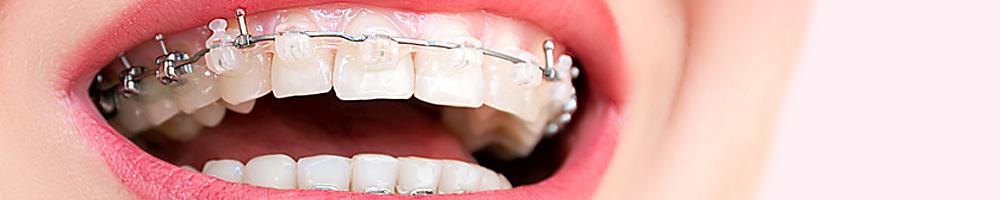 Leczenie ortodontyczne - Dental Star BiałystokLeczenie ortodontyczne - Dental Star Białystok