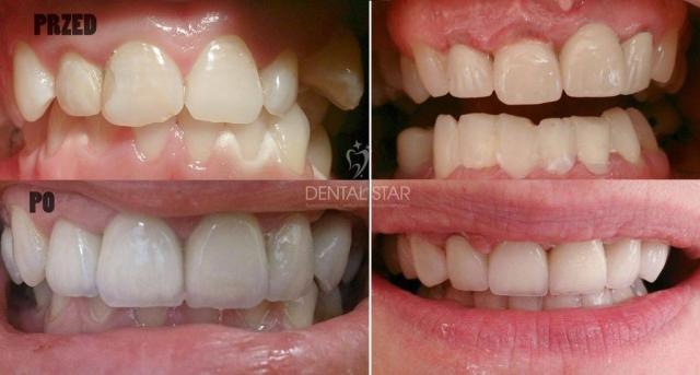 """Dental Star - Metamorfozy """"Przed i po"""" nr 1"""