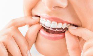 Clear Aligner - Ortodonta Białystok Dental Star