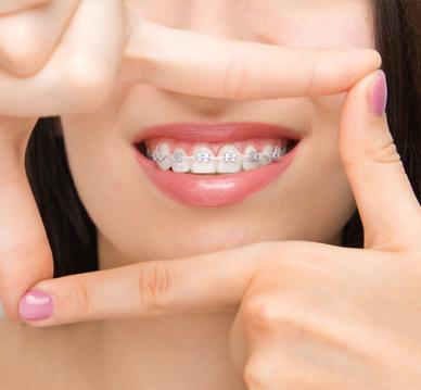 Leczenie ortodontyczne - Białystok Dental Star